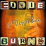 Eddie Burns 2nd Degree Burns